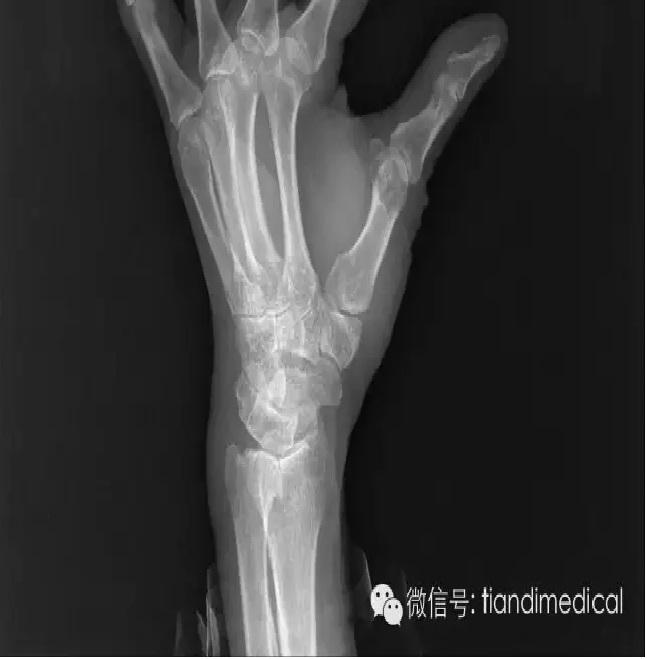 科普:PET-CT和X光、B超、CT、MRI有什么区别?(转)